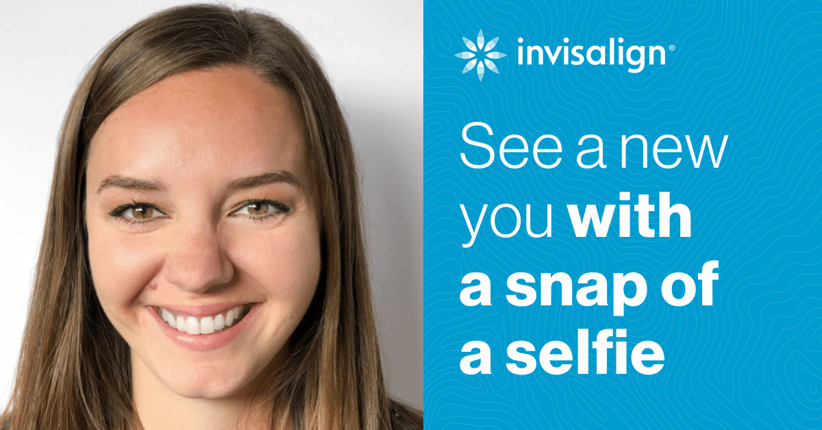 Invisalign SmileView at Dr. W. Gray Grieve Orthodontics in Eugene WA